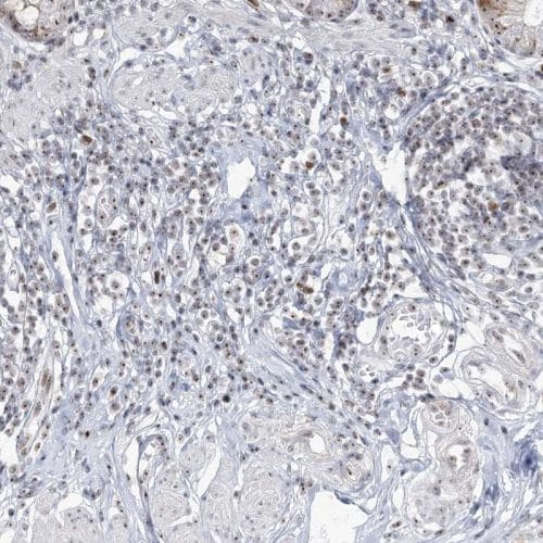 Immunohistochemistry (Formalin/PFA-fixed paraffin-embedded sections) - Anti-DDX21 antibody (ab244458)