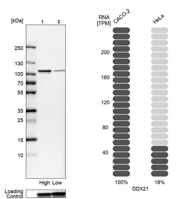 Western blot - Anti-DDX21 antibody (ab244458)