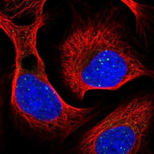 Immunocytochemistry/ Immunofluorescence - Anti-RAP80 antibody (ab244464)