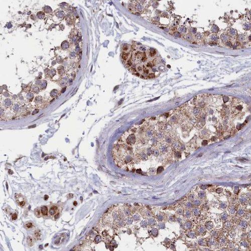 Immunohistochemistry (Formalin/PFA-fixed paraffin-embedded sections) - Anti-TIM44 antibody (ab244466)