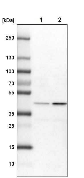 Western blot - Anti-TIM44 antibody (ab244466)