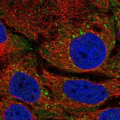 Immunocytochemistry/ Immunofluorescence - Anti-STAM1 antibody (ab244470)