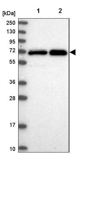 Western blot - Anti-STAM1 antibody (ab244470)