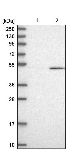 Western blot - Anti-CUG-BP1 antibody (ab244474)