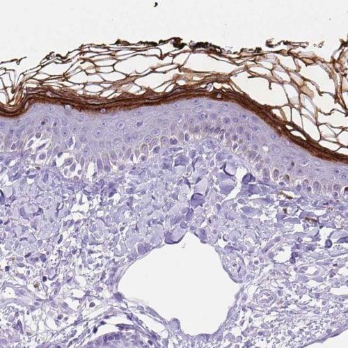 Immunohistochemistry (Formalin/PFA-fixed paraffin-embedded sections) - Anti-Corneodesmosin/S protein antibody (ab244476)
