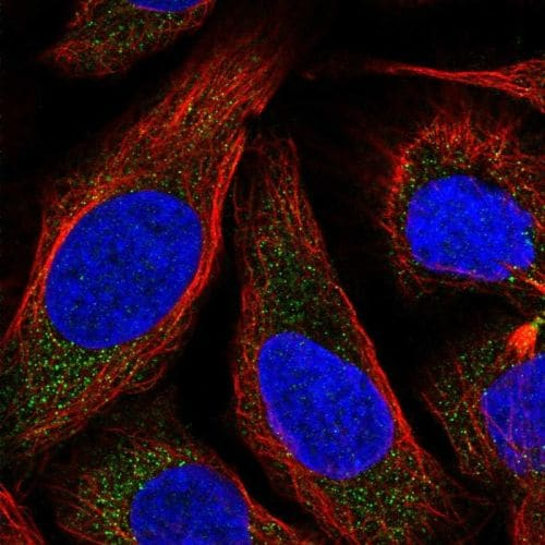 Immunocytochemistry/ Immunofluorescence - Anti-NKB antibody (ab244479)
