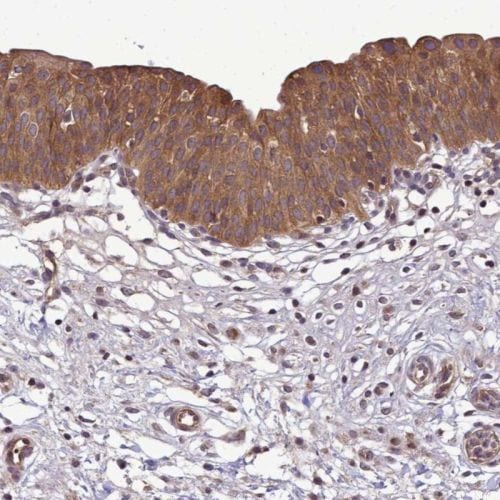 Immunohistochemistry (Formalin/PFA-fixed paraffin-embedded sections) - Anti-TRIM31 antibody (ab244481)