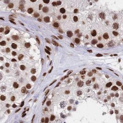 Immunohistochemistry (Formalin/PFA-fixed paraffin-embedded sections) - Anti-HDGF antibody (ab244485)
