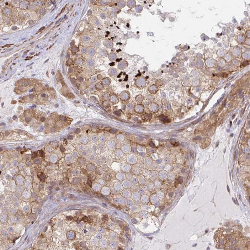 Immunohistochemistry (Formalin/PFA-fixed paraffin-embedded sections) - Anti-LARP1 antibody (ab244493)