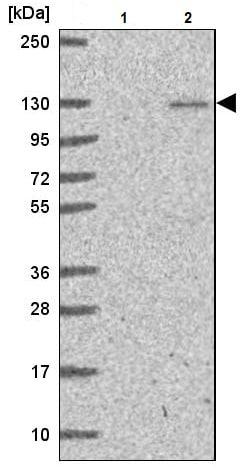 Western blot - Anti-p107 antibody (ab244504)