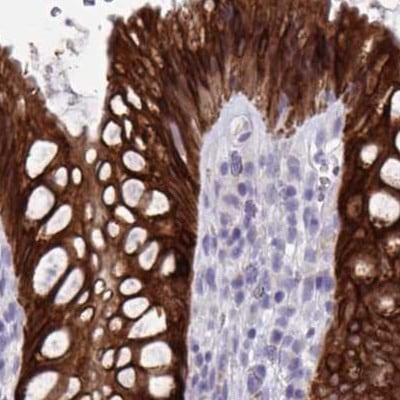 Immunohistochemistry (Formalin/PFA-fixed paraffin-embedded sections) - Anti-HSD11B2 antibody (ab244510)