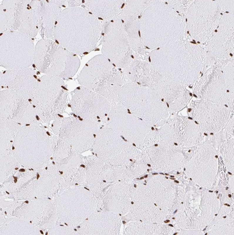 Immunohistochemistry (Formalin/PFA-fixed paraffin-embedded sections) - Anti-hnRNP G antibody (ab244514)