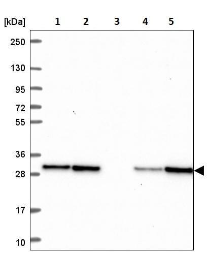 Western blot - Anti-TPD52 antibody (ab244523)
