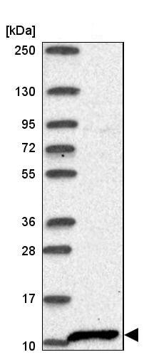 Western blot - Anti-S100 alpha 2/S100A2 antibody (ab244524)