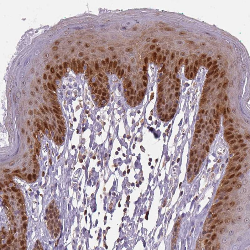 Immunohistochemistry (Formalin/PFA-fixed paraffin-embedded sections) - Anti-S100 alpha 2/S100A2 antibody (ab244524)