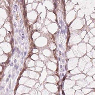 Immunohistochemistry (Formalin/PFA-fixed paraffin-embedded sections) - Anti-HOXB13 antibody (ab244529)