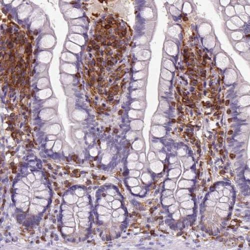 Immunohistochemistry (Formalin/PFA-fixed paraffin-embedded sections) - Anti-SHIP-1 antibody (ab244542)