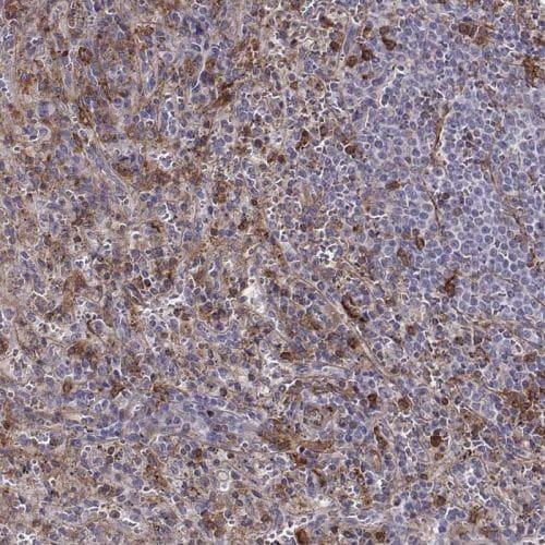 Immunohistochemistry (Formalin/PFA-fixed paraffin-embedded sections) - Anti-Zyxin antibody (ab244546)