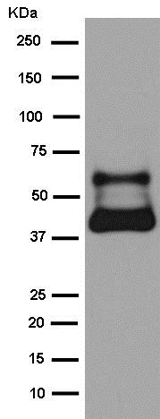 Western blot - Anti-Inhibin beta B antibody [EPR2787(2)] - BSA and Azide free (ab245139)