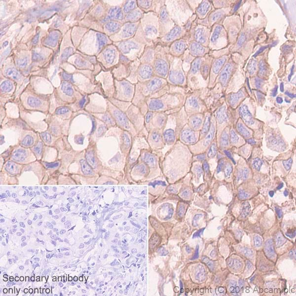 Immunohistochemistry (Formalin/PFA-fixed paraffin-embedded sections) - Anti-P cadherin antibody [EPR22426] - BSA and Azide free (ab245204)