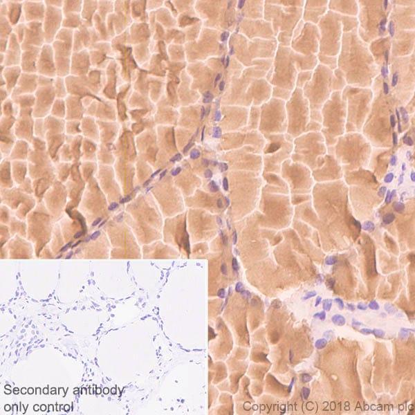 Immunohistochemistry (Formalin/PFA-fixed paraffin-embedded sections) - Anti-Thyroglobulin antibody [CPT-R35.3-31] - BSA and Azide free (ab245205)