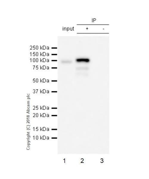 Immunoprecipitation - Anti-Plasminogen antibody [EPR22406-159] (ab245247)