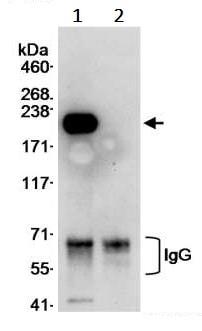 Immunoprecipitation - Anti-Tuberin antibody (ab245280)