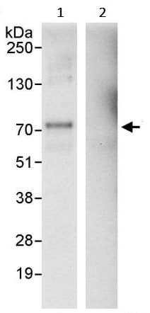 Immunoprecipitation - Anti-YAP1 antibody (ab245286)