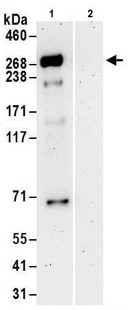 Immunoprecipitation - Anti-Tet2 antibody (ab245287)