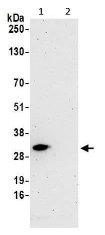 Immunoprecipitation - Anti-eIF4E antibody (ab245299)