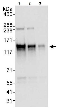 Western blot - Anti-Axl antibody (ab245302)