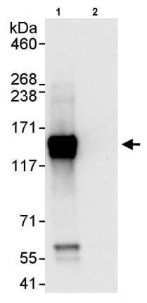 Immunoprecipitation - Anti-Axl antibody (ab245302)