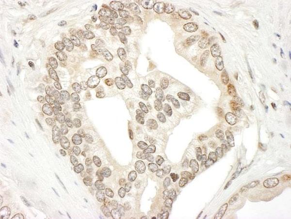 Immunohistochemistry (Formalin/PFA-fixed paraffin-embedded sections) - Anti-JAK2 antibody (ab245303)
