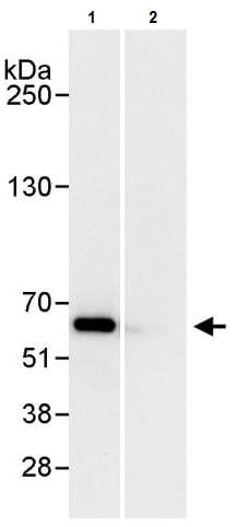 Immunoprecipitation - Anti-HDAC2 antibody (ab245305)