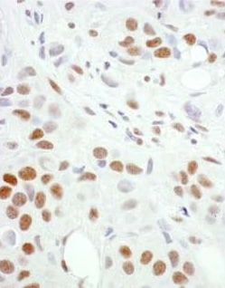 Immunohistochemistry (Formalin/PFA-fixed paraffin-embedded sections) - Anti-HSF1 antibody (ab245317)
