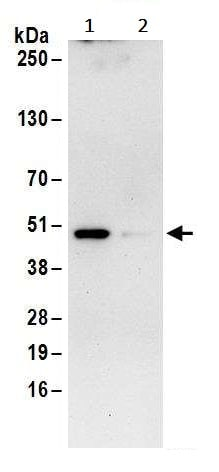 Immunoprecipitation - Anti-IDH1 antibody (ab245320)