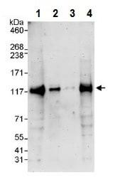 Western blot - Anti-Notch2 antibody (ab245325)