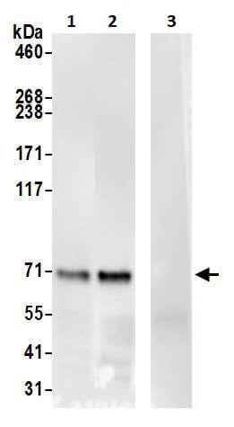 Immunoprecipitation - Anti-Syk antibody (ab245328)