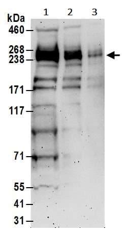Western blot - Anti-BRCA1 antibody (ab245330)
