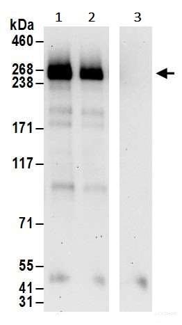Immunoprecipitation - Anti-BRCA1 antibody (ab245330)