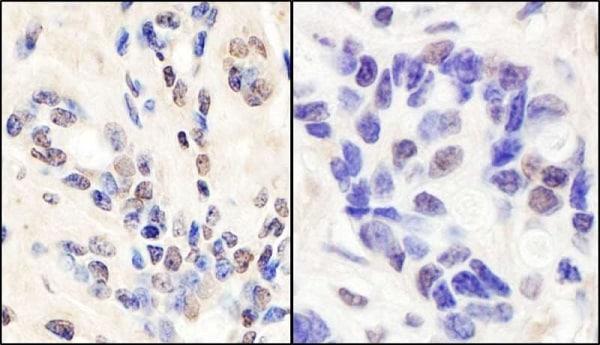 Immunohistochemistry (Formalin/PFA-fixed paraffin-embedded sections) - Anti-BRCA1 antibody (ab245330)