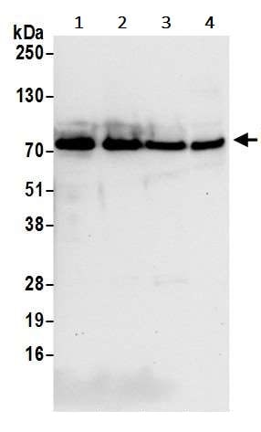Western blot - Anti-TLS/FUS antibody (ab245332)
