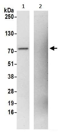 Immunoprecipitation - Anti-TLS/FUS antibody (ab245332)