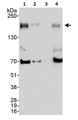 Western blot - Anti-ErbB 2 antibody (ab245335)