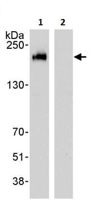 Immunoprecipitation - Anti-ErbB 2 antibody (ab245335)