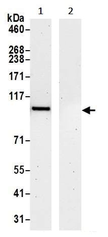 Immunoprecipitation - Anti-VCP antibody (ab245345)
