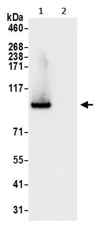 Immunoprecipitation - Anti-VCP antibody (ab245346)