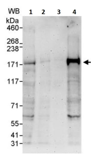 Western blot - Anti-FANCD2 antibody (ab245347)