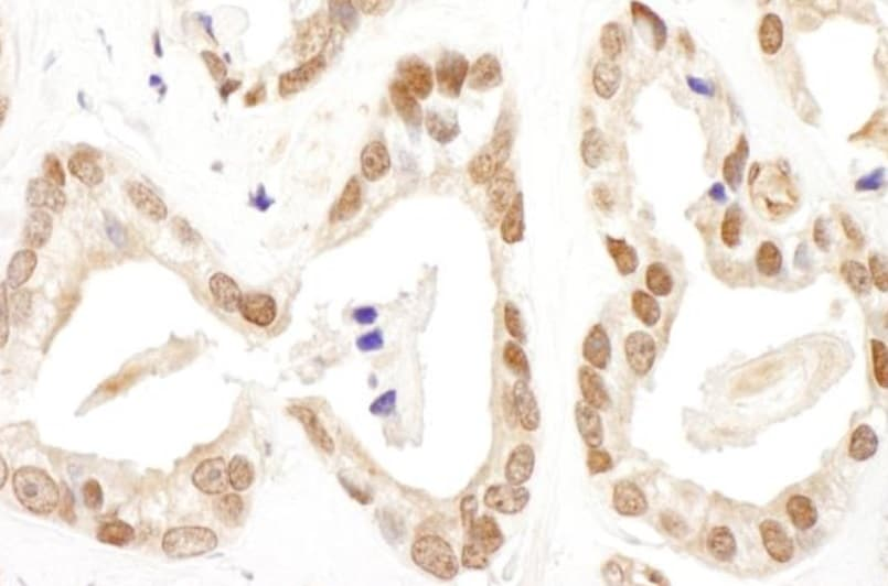Immunohistochemistry (Formalin/PFA-fixed paraffin-embedded sections) - Anti-FANCD2 antibody (ab245347)