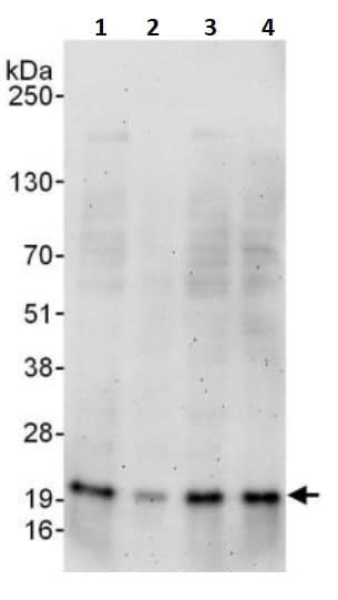Western blot - Anti-Superoxide Dismutase 1 antibody (ab245351)